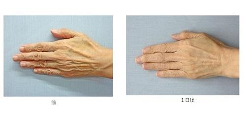手のヒアルロン酸