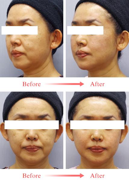 「PRP(多血小板血漿)療法」7つの代表的な効果